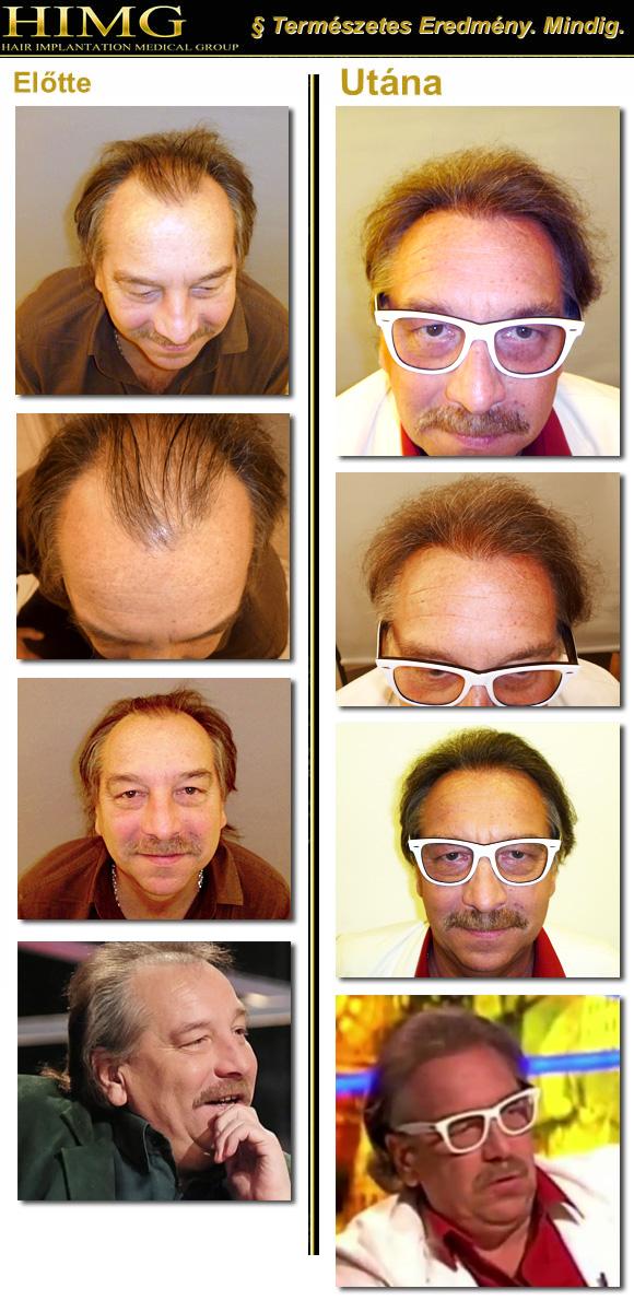 Bajor Imre - hajbeültetési eredmény