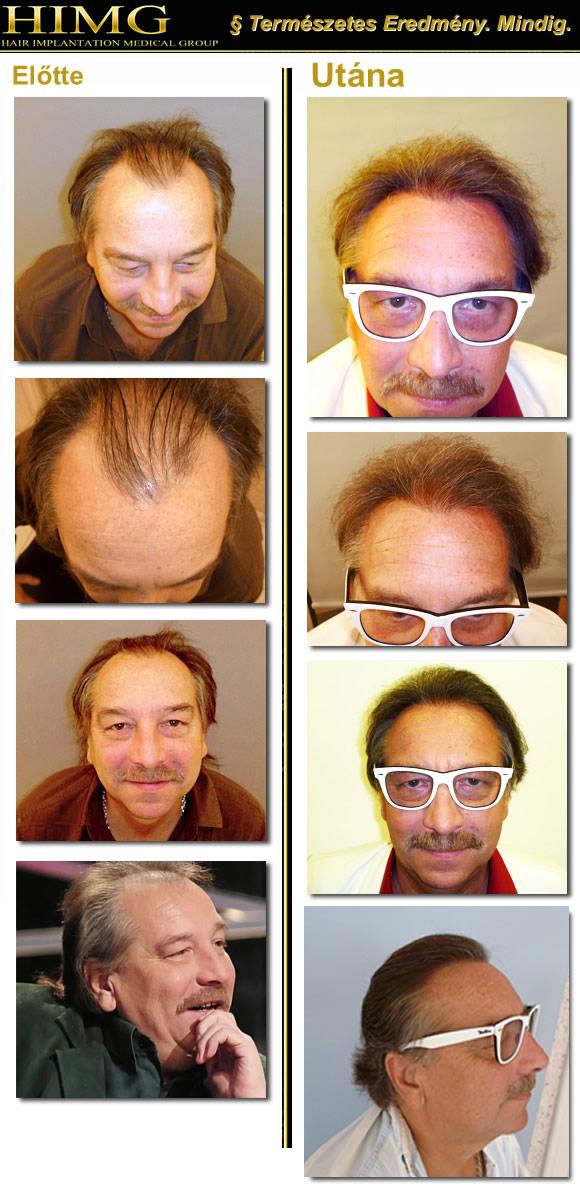 Bajor Imre hajbeültetése