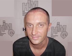 Hajátültetési eredmények