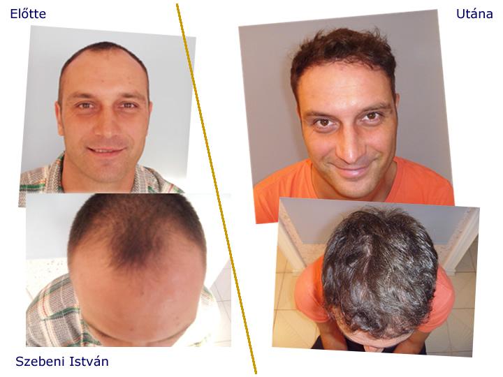 További hajátültetési eredmények itt