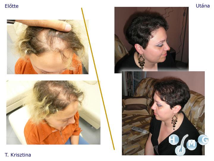 hajbeültetési eredmények