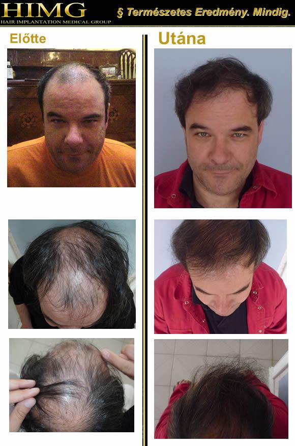 Férfi hajhullás - Férfi hajvesztés