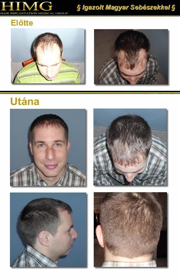 Hajátültetés - hajátültetési beavatkozás