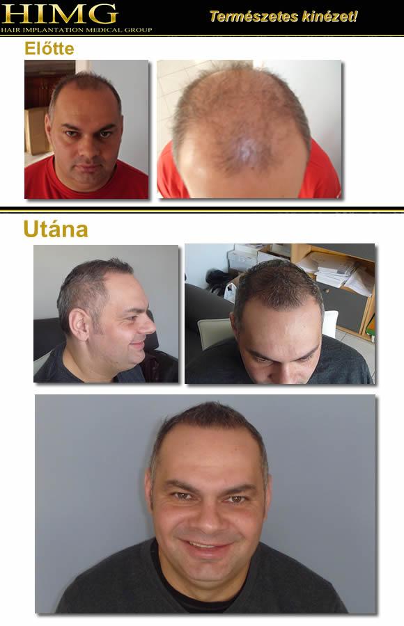 Hajbeültetés, hajátültetés Zala Megyében