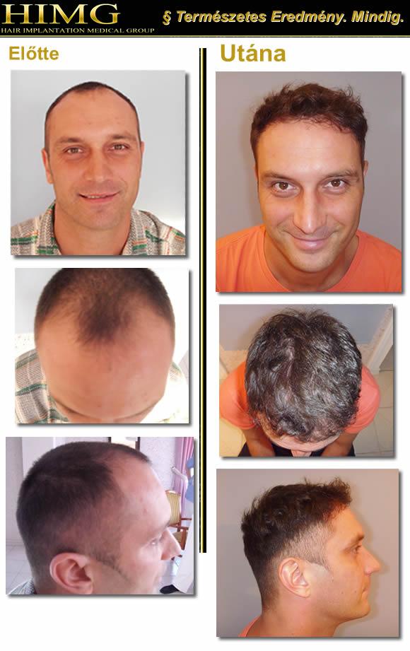 Férfi Kopaszodás avagy az Androgenetikus Alopécia a Férfiaknál