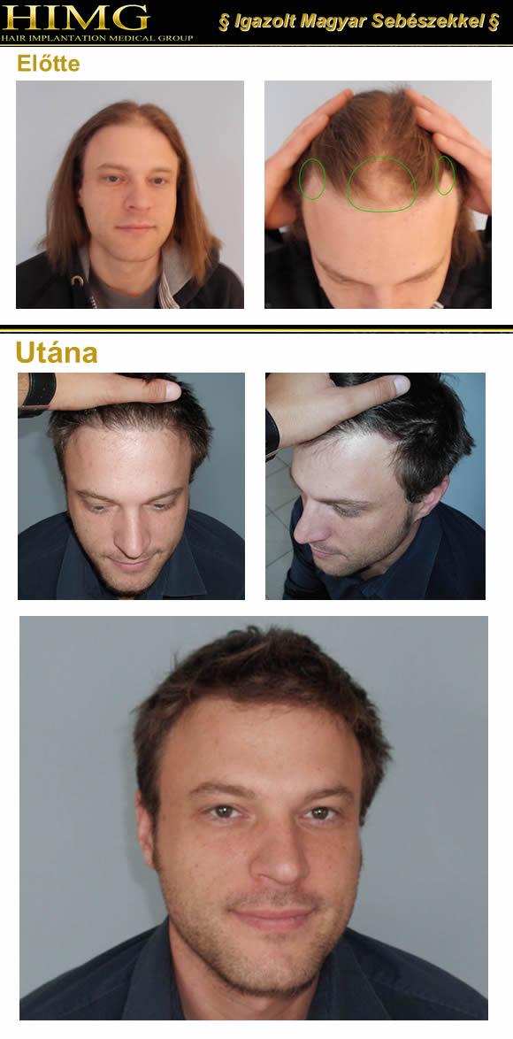 Hajszálankénti hajbeültetés