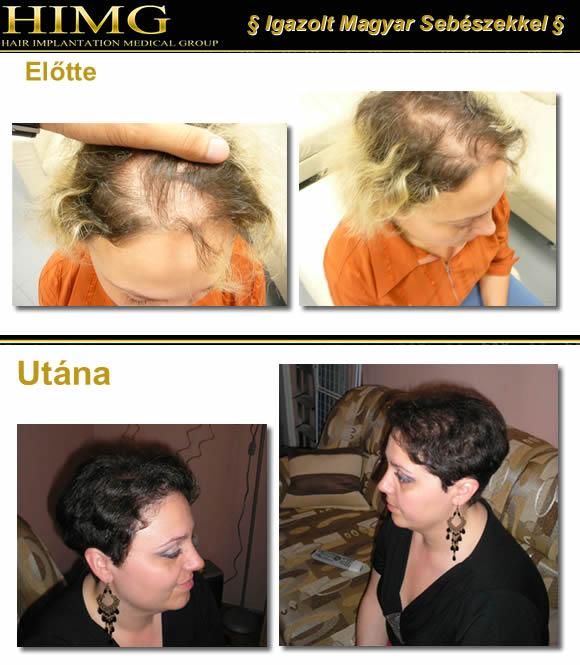 Hajbeültetés, hajátültetés Veszprém Megyében