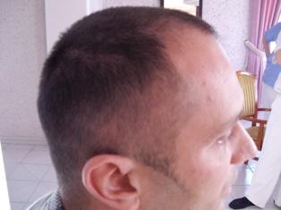 Szebeni István a hajátültetés előtt