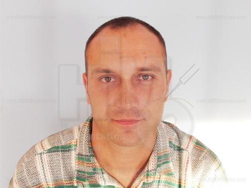 Szebeni István hajátültetés előtt
