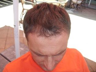 Szebeni István hajbeültetés után