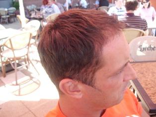 Szebeni István hajbeültetés után oldalról