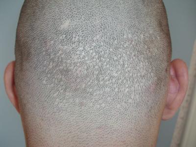 FUE hajbeültetés nyomai