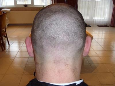 FUE2 hajbeültetés nyomai